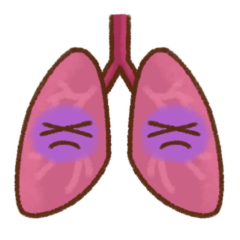 pneumonia-image-1